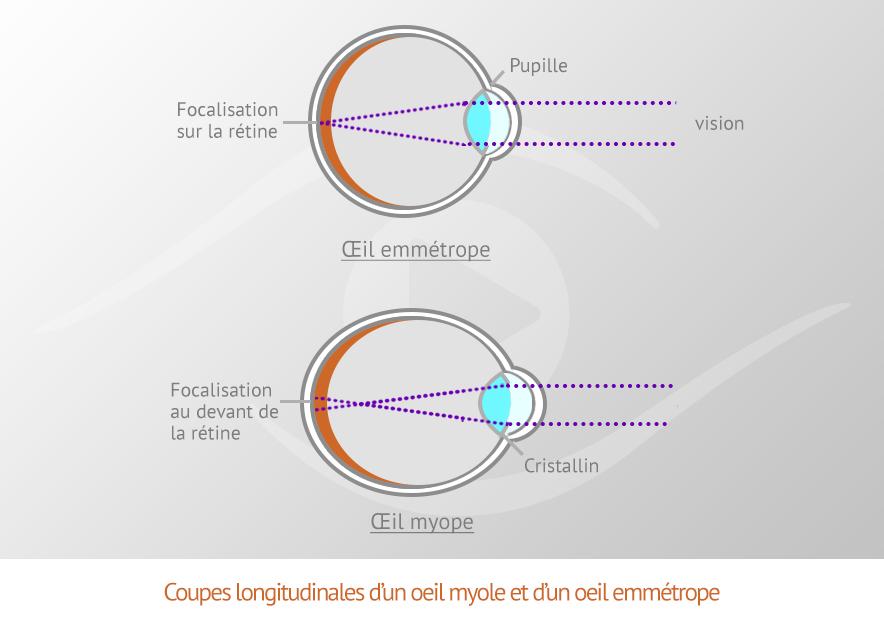 f15238a46e Coupe longitudinale d'un oeil myope et d'un un oeil emmétrope