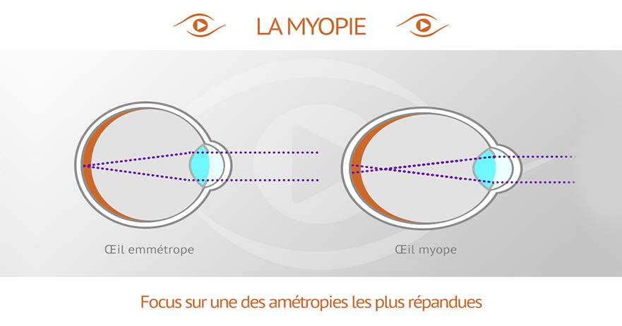 d8ac04f32c Comparaison d'un oeil myope avec un oeil emmétrope