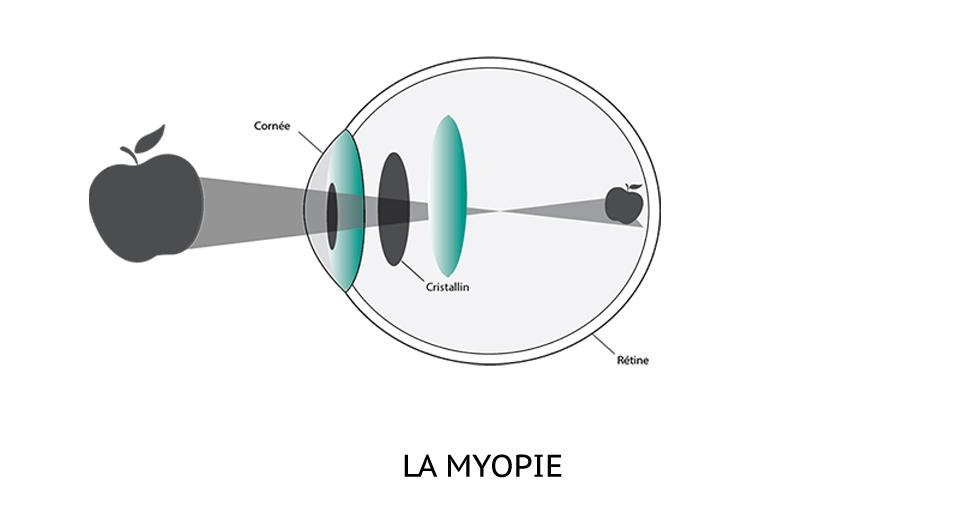 Chirurgie myopie bordeaux chirurgie refractive de la myopie - A quel age peut on porter des lentilles de contact ...